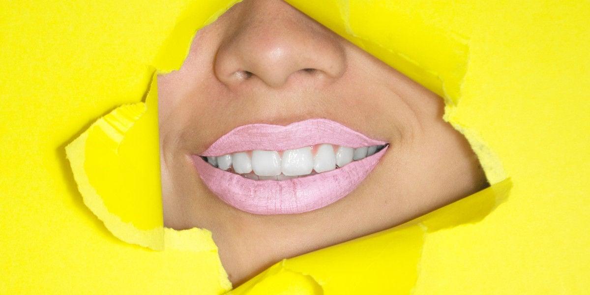 Alcuni ceppi di probiotici possono ridurre la placca e la carie dentaria